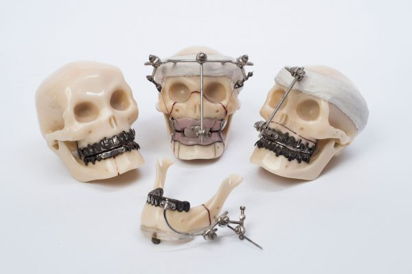 model skulls showing external fixation of facial bones